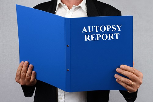 pic of man holding an Autopsy report